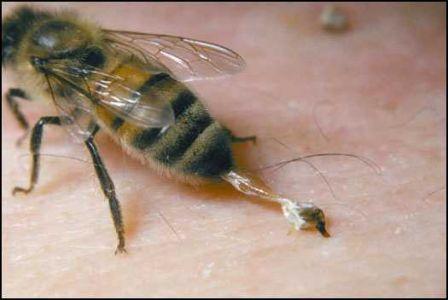Piqure abeille m